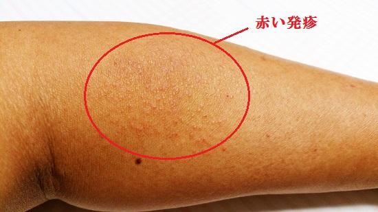 左腕の赤い発疹