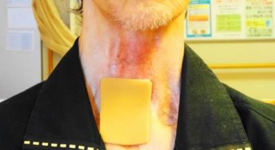 腫れのある喉頭部