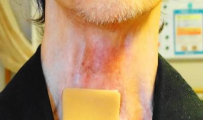 貼れた喉元のアップ