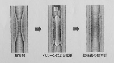バルーン拡張術の図解