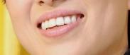 みっちゃんの歯並び
