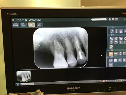 9202016 DentistS2