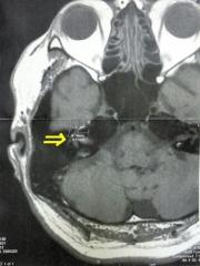 160919_4184_8月10日に撮った脳のMRI画像_縦VGA