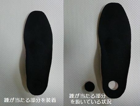1 靴底の補正具・上面